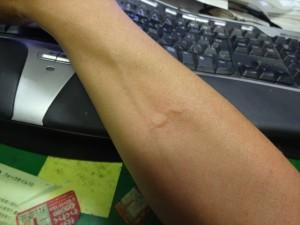 蚊に食われた
