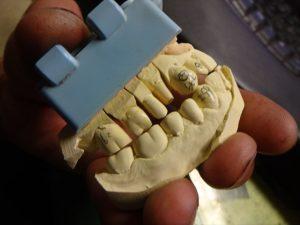 上顎と下顎の石膏